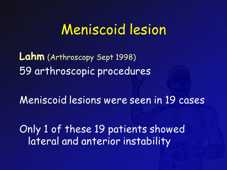 Meniscoid lesion Lahm (Arthroscopy Sept 1998) 59 arthroscopic procedures Meniscoid lesions were seen in 19 cases Only 1 of these 19 patients showed la