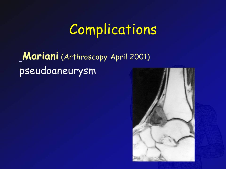 Complications Mariani (Arthroscopy April 2001) pseudoaneurysm