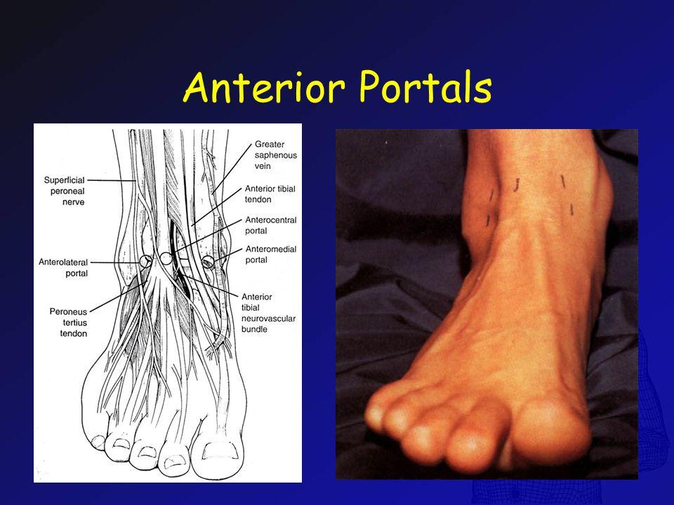 Anterior Portals