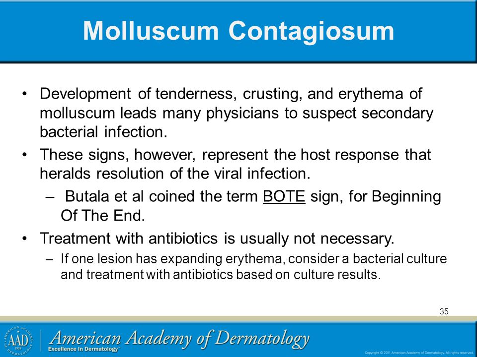 Molluscum Contagiosum Development of tenderness, crusting, and erythema of molluscum leads many physicians to suspect secondary bacterial infection. T