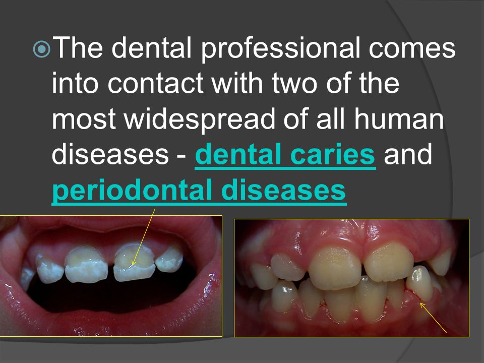  The dental professional comes into contact with two of the most widespread of all human diseases - dental caries and periodontal diseasesdental cari