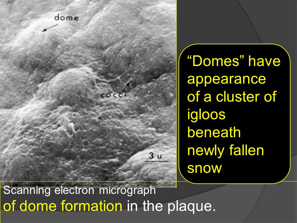"Scanning electron micrograph of dome formation in the plaque.. ""Domes"" have appearance of a cluster of igloos beneath newly fallen snow"