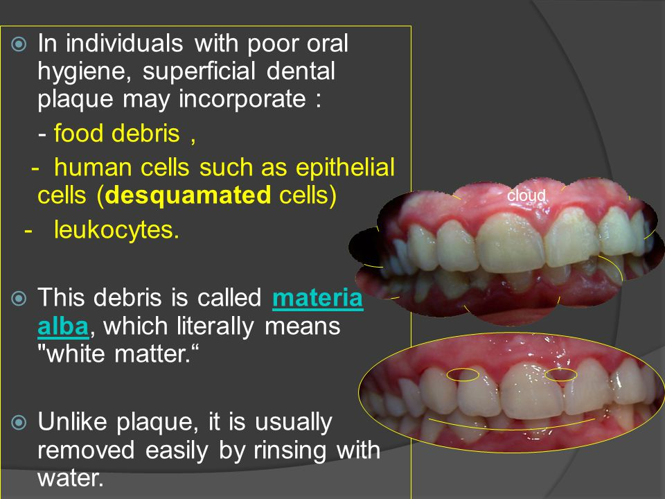  In individuals with poor oral hygiene, superficial dental plaque may incorporate : - food debris, - human cells such as epithelial cells (desquamate