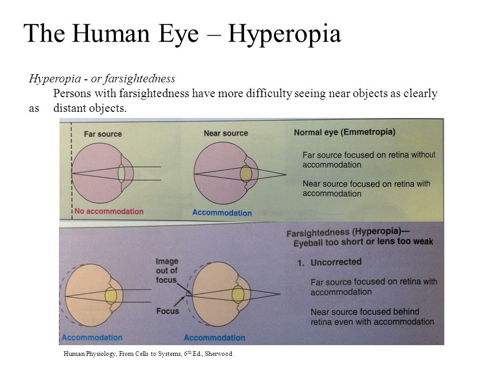 The Human Eye – Hyperopia Hyperopia - or farsightedness Persons with farsightedness have more difficulty seeing near objects as clearly as distant objects.