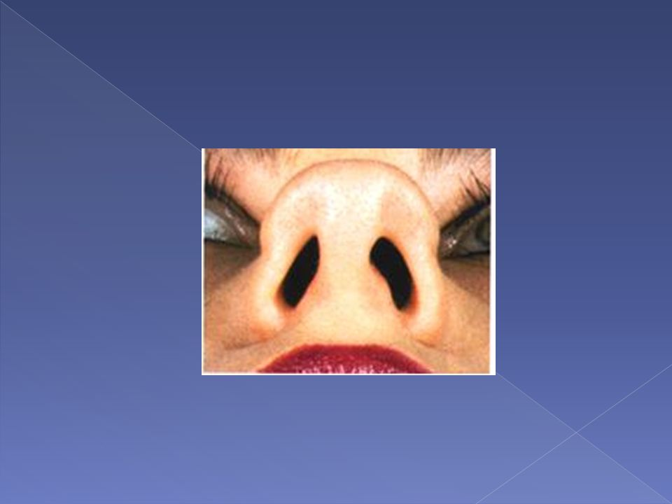  The boxy tip is defined as a broad, rectangular tip as seen on basal view