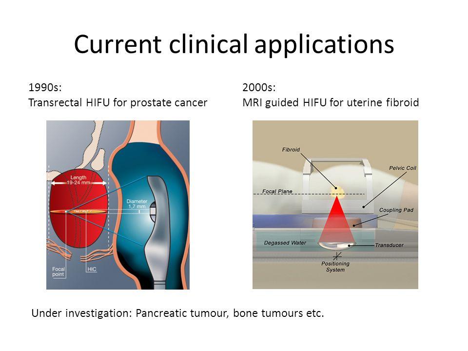 Ultrasound guided HIFU system