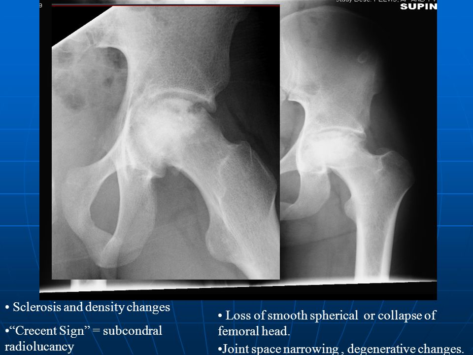 Sclerosis and density changes Crecent Sign = subcondral radiolucancy Loss of smooth spherical or collapse of femoral head.
