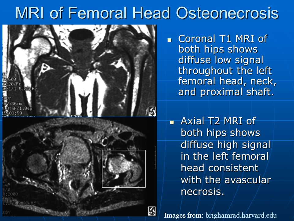 Osteonecrosis of Femoral Head Osteonecrosis = aseptic necrosis, avascular necrosis, ischemic necrosis and osteochondritis dessicans.