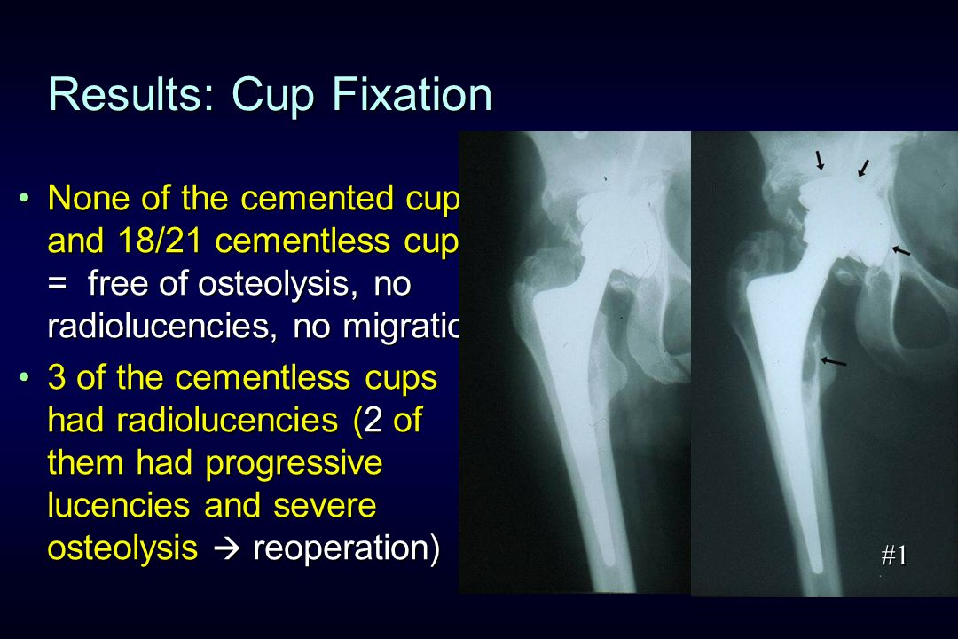 Results: Cup Fixation None of the cemented cups and 18/21 cementless cups = free of osteolysis, no radiolucencies, no migrationNone of the cemented cups and 18/21 cementless cups = free of osteolysis, no radiolucencies, no migration 3 of the cementless cups had radiolucencies (2 of them had progressive lucencies and severe osteolysis  reoperation)3 of the cementless cups had radiolucencies (2 of them had progressive lucencies and severe osteolysis  reoperation) 10 y.