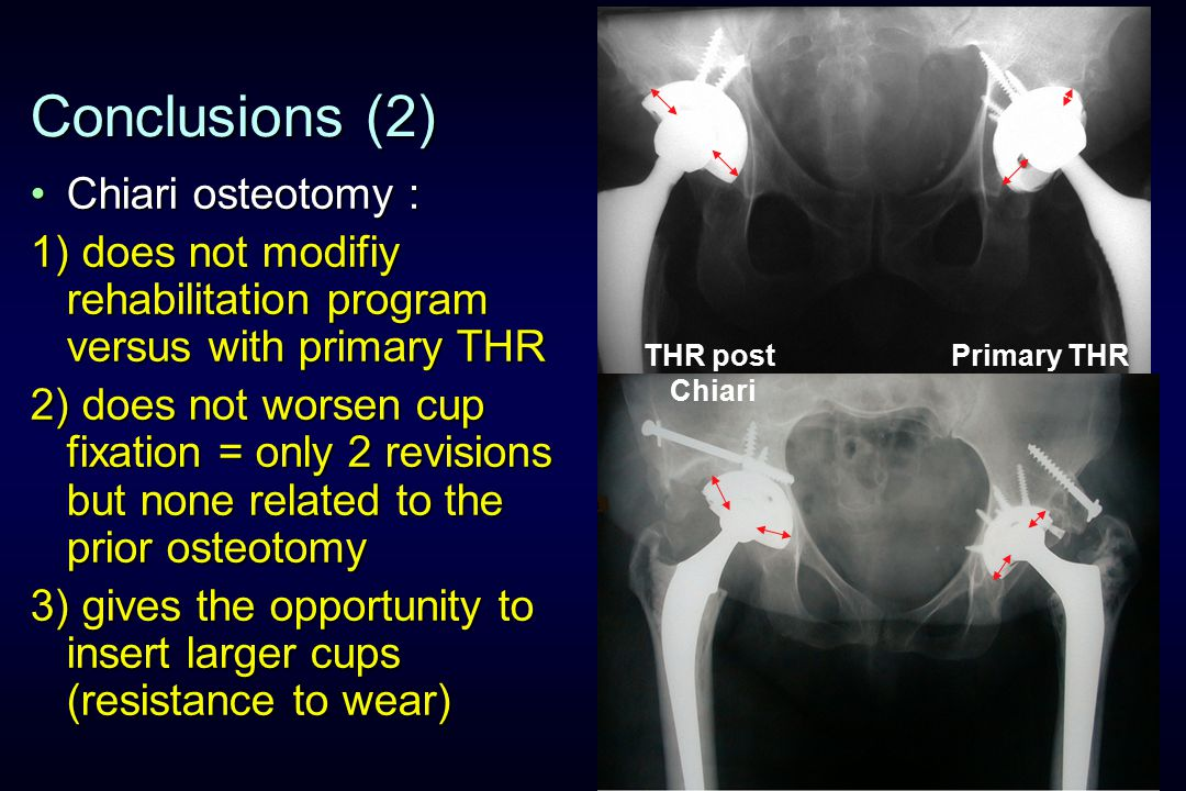 Conclusions (2) Chiari osteotomy :Chiari osteotomy : 1) does not modifiy rehabilitation program versus with primary THR 2) does not worsen cup fixation = only 2 revisions but none related to the prior osteotomy 3) gives the opportunity to insert larger cups (resistance to wear) Primary THRTHR post Chiari