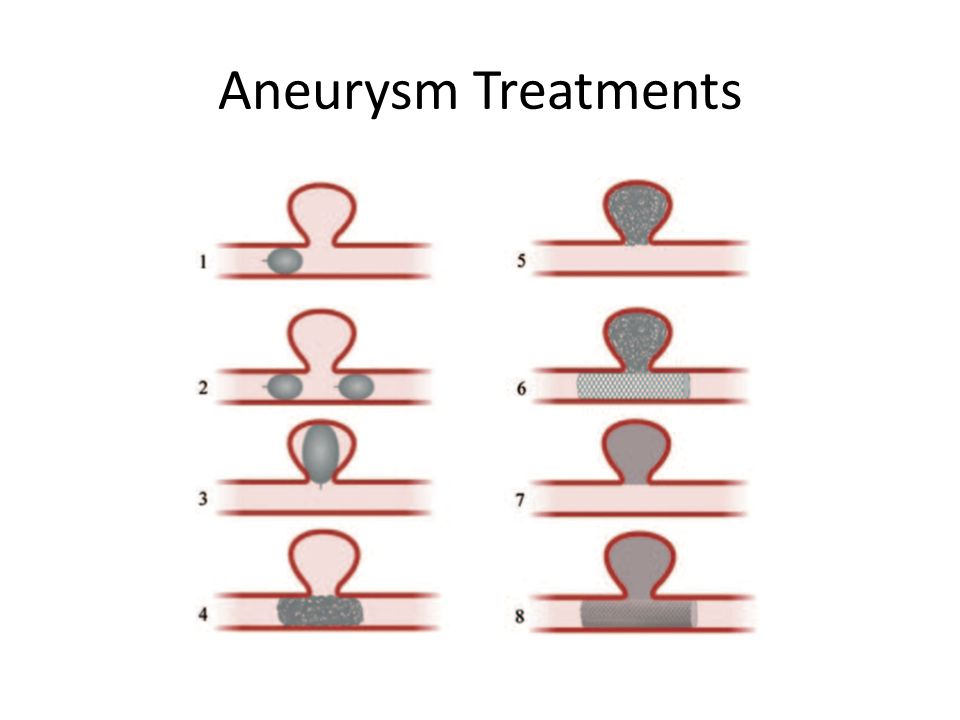Aneurysm Treatments