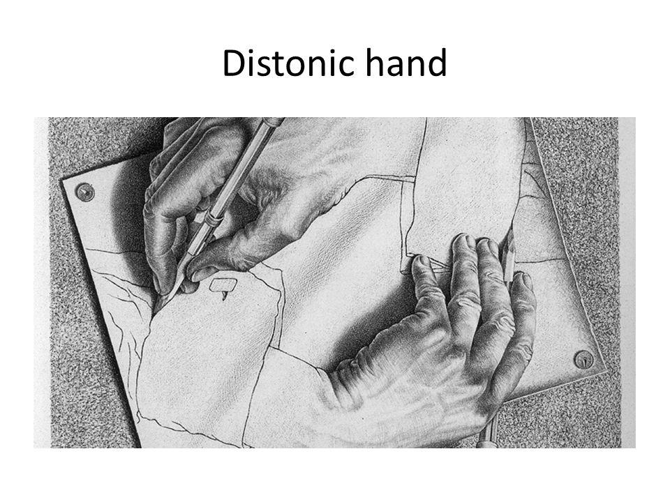 Distonic hand