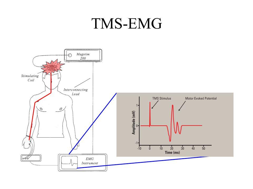 TMS-EMG
