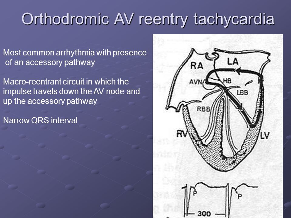 Orthodromic AV reentry tachycardia Most common arrhythmia with presence of an accessory pathway Macro-reentrant circuit in which the impulse travels d