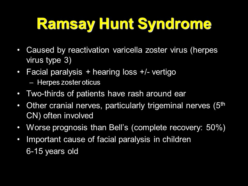 Ramsay Hunt Syndrome Caused by reactivation varicella zoster virus (herpes virus type 3) Facial paralysis + hearing loss +/- vertigo –Herpes zoster ot