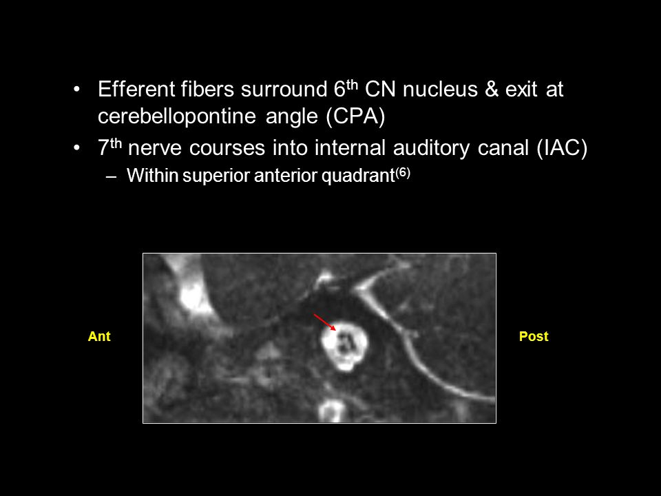 Efferent fibers surround 6 th CN nucleus & exit at cerebellopontine angle (CPA) 7 th nerve courses into internal auditory canal (IAC) –Within superior