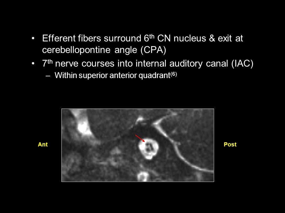 Perineural Tumor Spread