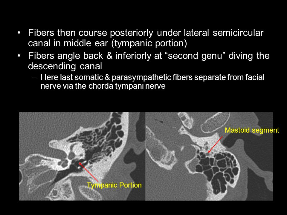 "Fibers then course posteriorly under lateral semicircular canal in middle ear (tympanic portion) Fibers angle back & inferiorly at ""second genu"" divin"