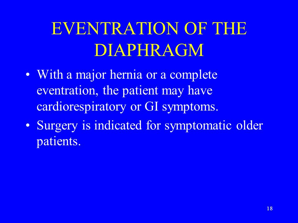 17 EVENTRATION OF THE DIAPHRAGM The surgery is usually through a thoracic approach.