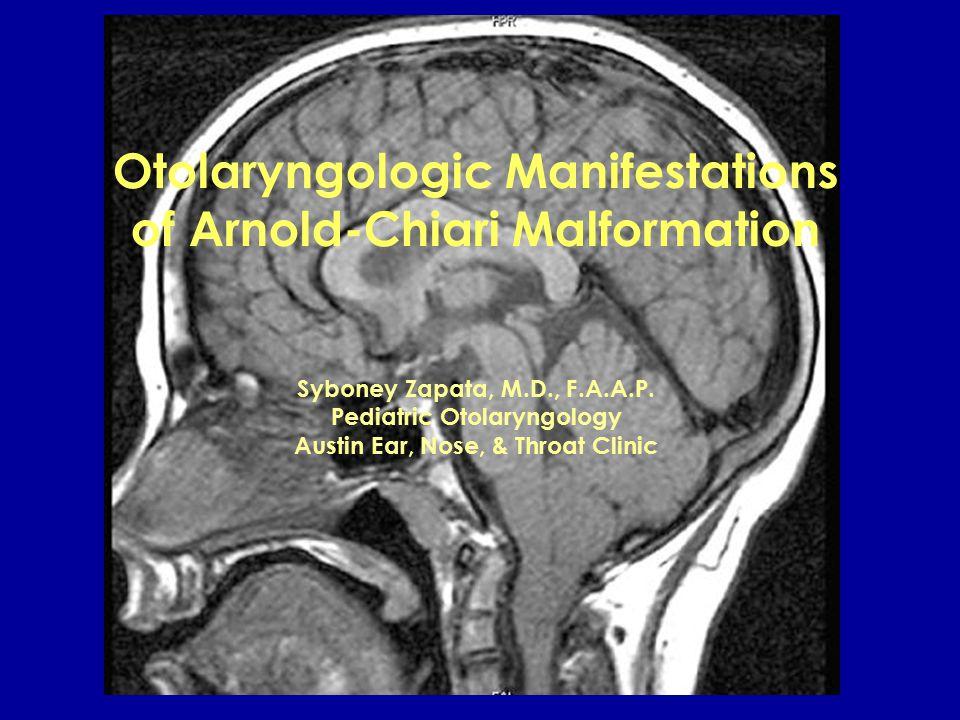 Otolaryngologic Manifestations of Arnold-Chiari Malformation Syboney Zapata, M.D., F.A.A.P.