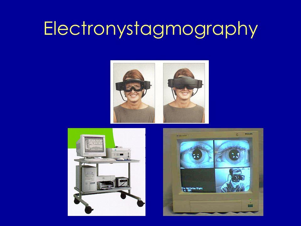 Electronystagmography