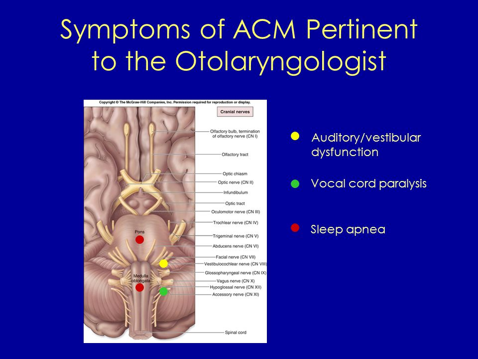 Symptoms of ACM Pertinent to the Otolaryngologist Auditory/vestibular dysfunction Vocal cord paralysis Sleep apnea