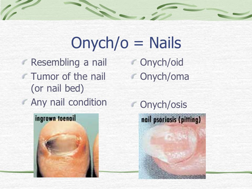 Onych/o = Nails Resembling a nail Tumor of the nail (or nail bed) Any nail condition Onych/oid Onych/oma Onych/osis
