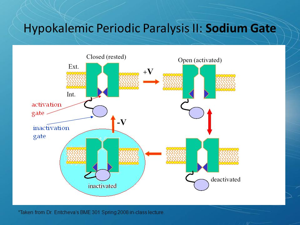 Hypokalemic Periodic Paralysis II: Sodium Gate *Taken from Dr.