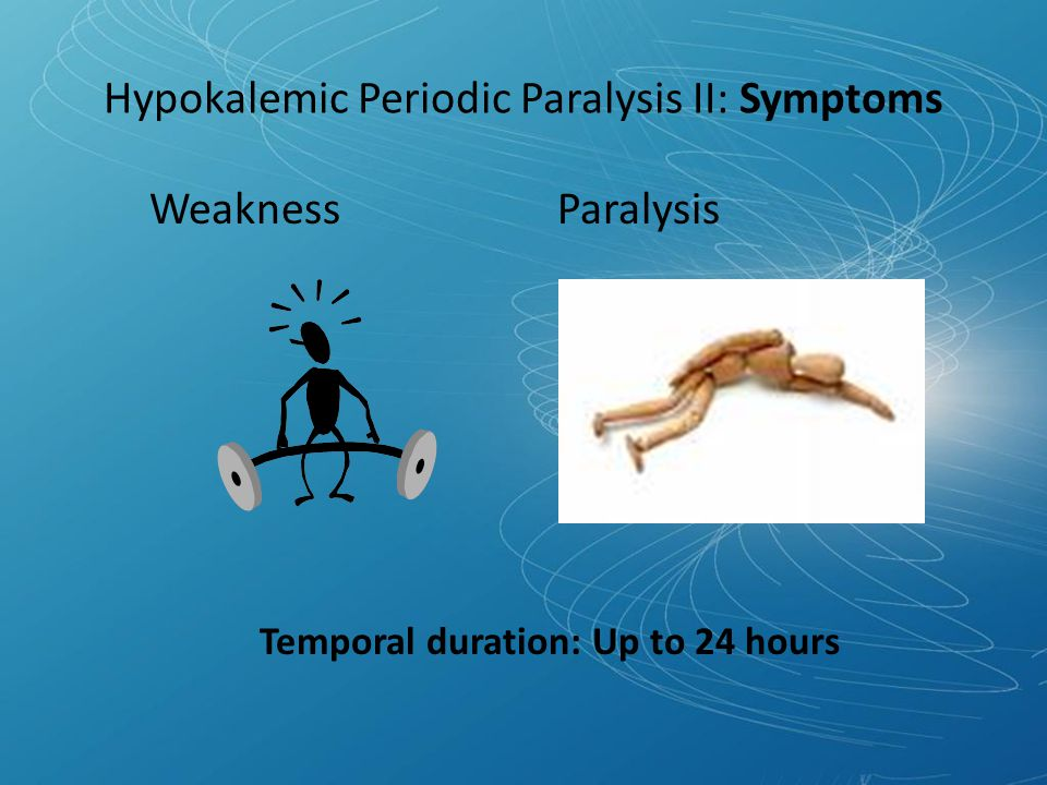 Hypokalemic Periodic Paralysis II: Symptoms Weakness Paralysis Temporal duration: Up to 24 hours