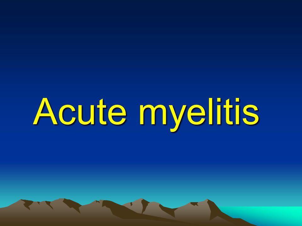 Acute myelitis