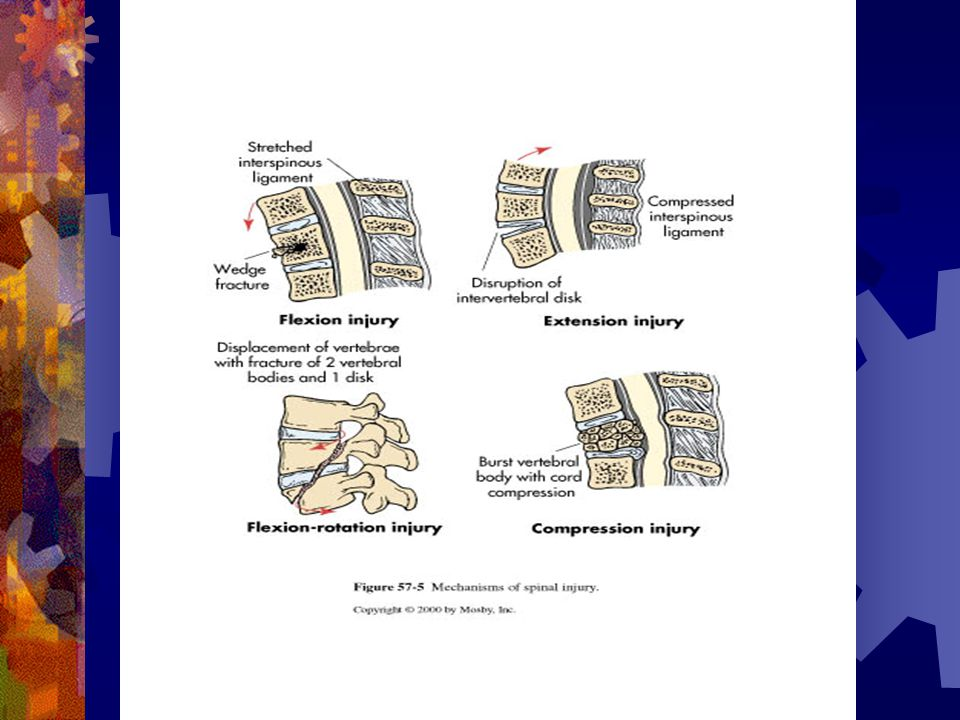 Posterior cord syndrome  Assoc with cervical hyperextension injuries  Dorsal area of cord is damaged resulting in loss of proprioception  Pain, temperature sensation and motor function remain intact.