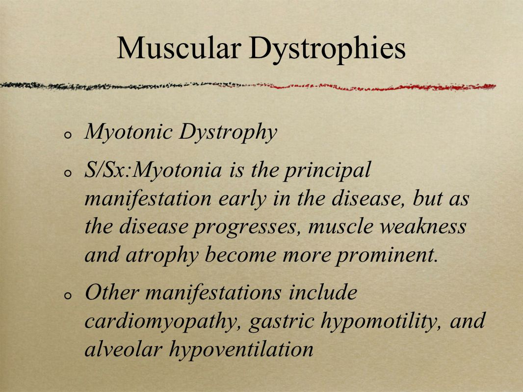 Muscular Dystrophies Myotonic Dystrophy S/Sx:Myotonia is the principal manifestation early in the disease, but as the disease progresses, muscle weakness and atrophy become more prominent.