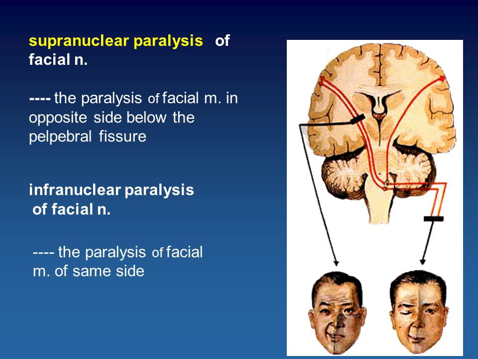 infranuclear paralysis of facial n.supranuclear paralysis of facial n.