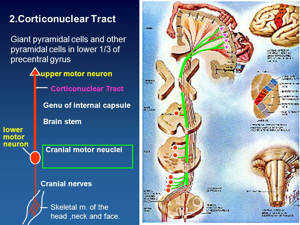 2.Corticonuclear Tract Giant pyramidal cells and other pyramidal cells in lower 1/3 of precentral gyrus Genu of internal capsule Brain stem Cranial nerves Cranial motor neuclei upper motor neuron lower motor neuron Skeletal m.