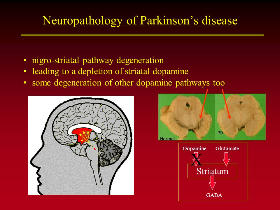 Striatum DopamineGlutamate GABA Neuropathology of Parkinson's disease nigro-striatal pathway degeneration leading to a depletion of striatal dopamine some degeneration of other dopamine pathways too X