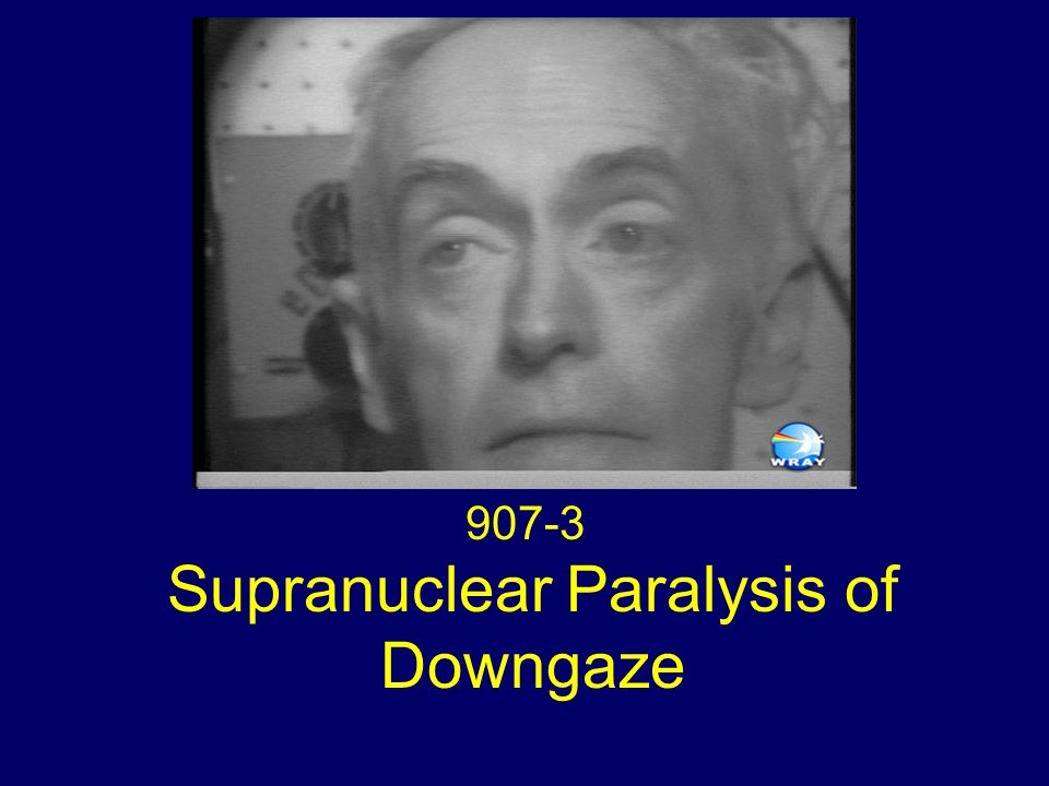 Eye Movements Global paralysis of downgaze Absent convergence Slow saccades on upgaze Deviation of the eyes up under forced eye closure (Bell phenomenon) Horizontal gaze nystagmus to the right
