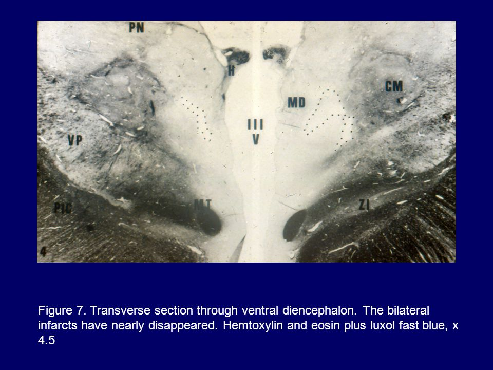 Figure 7. Transverse section through ventral diencephalon.
