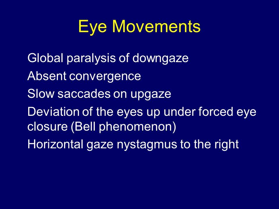 Eye Movements Optokinetic nystagmus absent with vertical rotation of the drum Normal vertical oculocephalic reflex Skew deviation, right hypertropia Left head tilt – left ocular tilt reaction