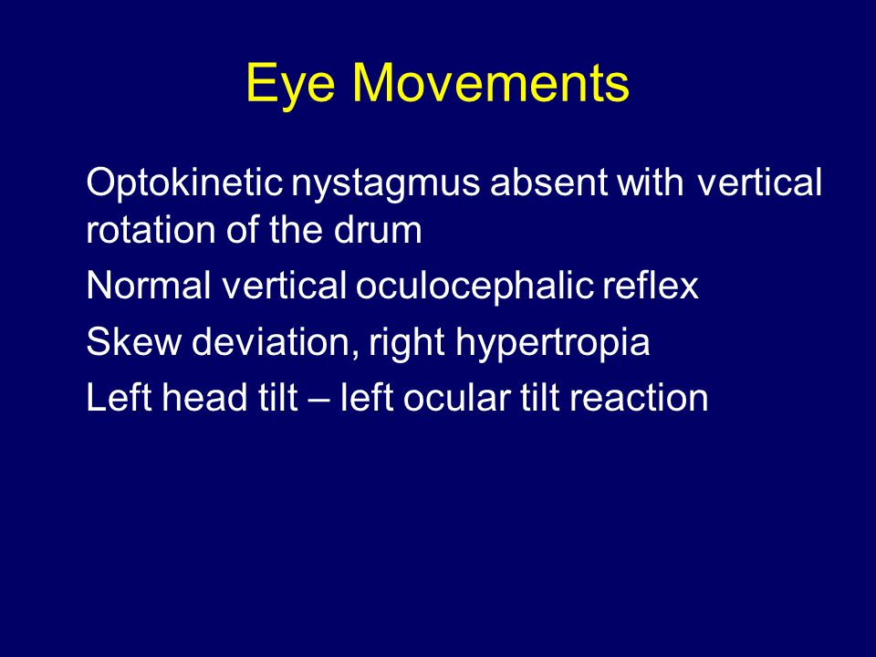 Eye Movements Optokinetic nystagmus absent with vertical rotation of the drum Normal vertical oculocephalic reflex Skew deviation, right hypertropia Left head tilt – left ocular tilt reaction