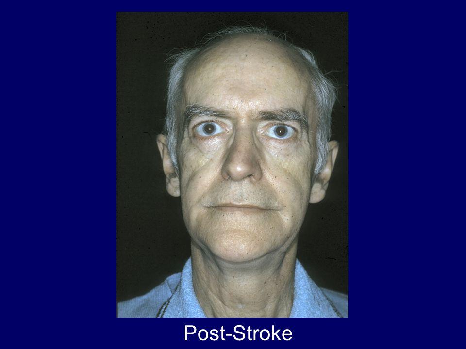 Post-Stroke