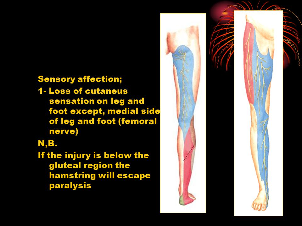 Sensory affection; 1- Loss of cutaneus sensation on leg and foot except, medial side of leg and foot (femoral nerve) N,B. If the injury is below the g