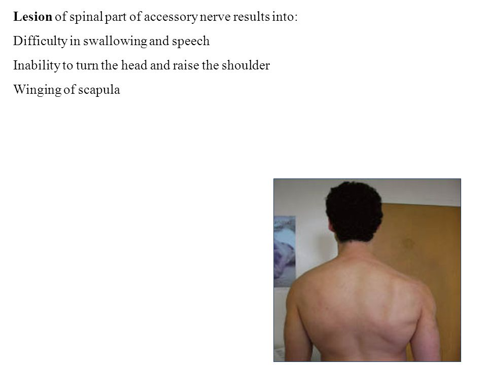 Lesion of spinal part of accessory nerve results into: Difficulty in swallowing and speech Inability to turn the head and raise the shoulder Winging of scapula