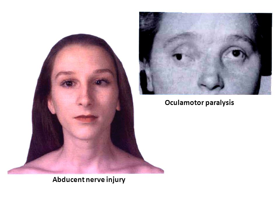 Oculamotor paralysis Abducent nerve injury