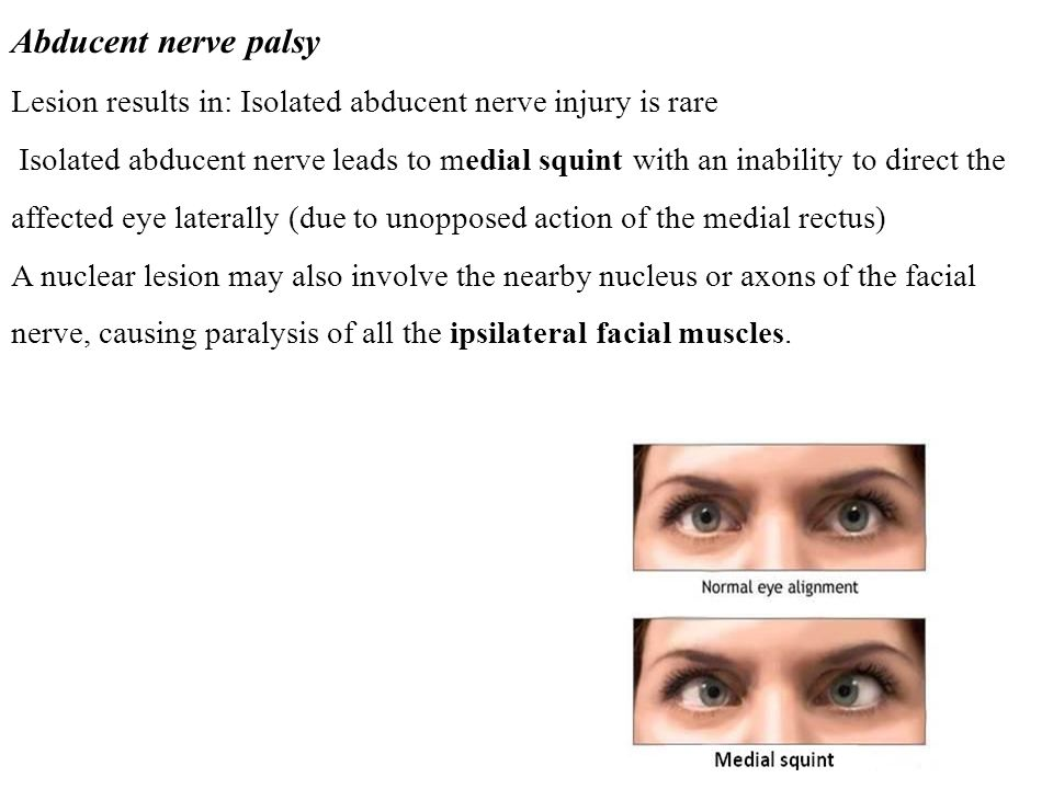 Abducent nerve palsy Lesion results in: Isolated abducent nerve injury is rare Isolated abducent nerve leads to medial squint with an inability to direct the affected eye laterally (due to unopposed action of the medial rectus) A nuclear lesion may also involve the nearby nucleus or axons of the facial nerve, causing paralysis of all the ipsilateral facial muscles.
