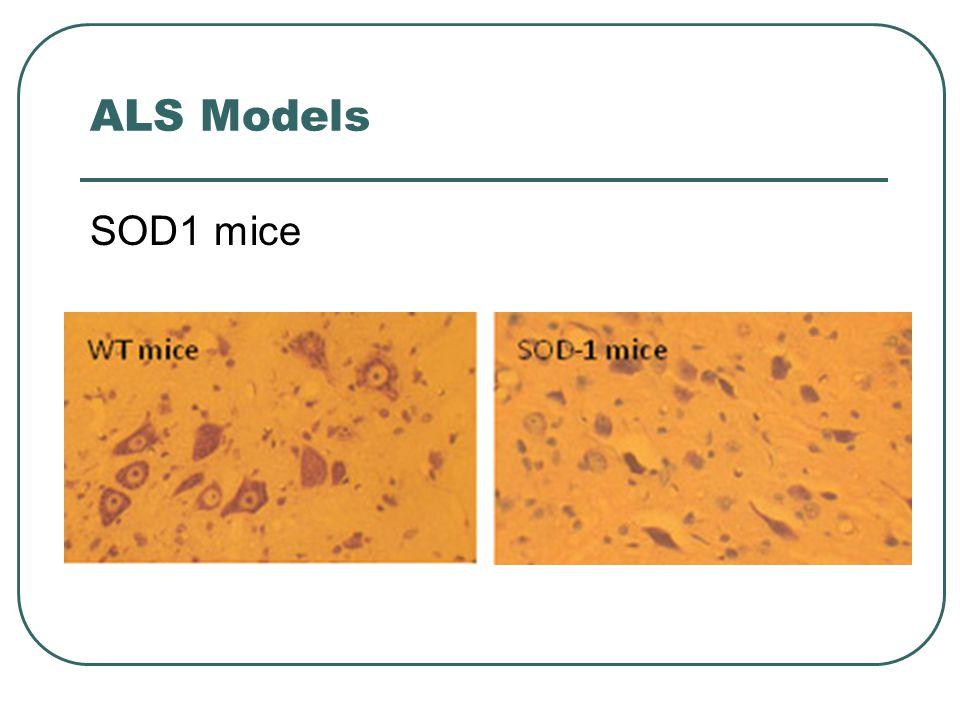 ALS Models SOD1 mice