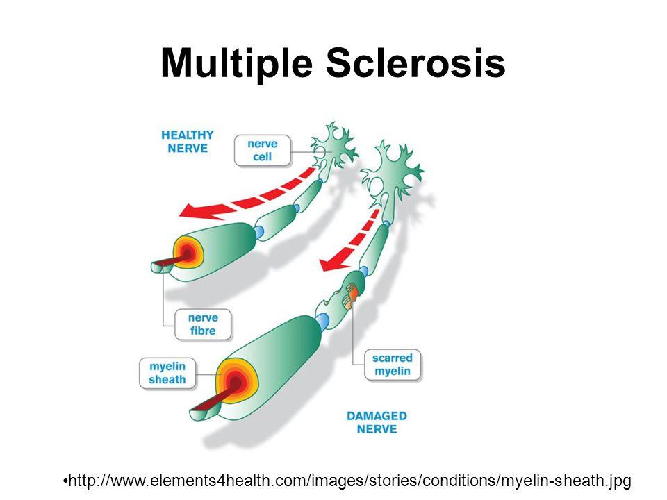 EAE Models Active EAE: immunized with myelin antigen or peptide emulsified in CFA Monophasic or relapsing-remitting disease Disease process commences 10-15 days post- immunization 75-80% incidence of disease