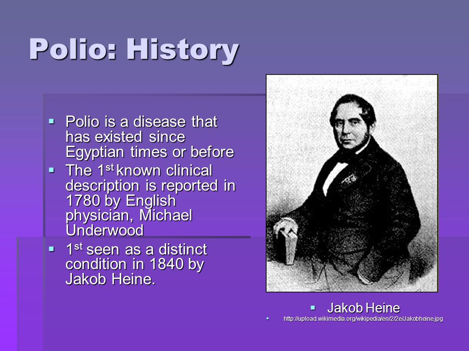 Polio: History  Polio is a disease that has existed since Egyptian times or before  The 1 st known clinical description is reported in 1780 by English physician, Michael Underwood  1 st seen as a distinct condition in 1840 by Jakob Heine.