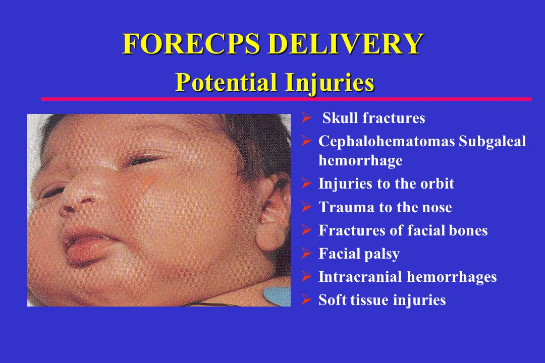 FORECPS DELIVERY  Skull fractures  Cephalohematomas Subgaleal hemorrhage  Injuries to the orbit  Trauma to the nose  Fractures of facial bones  Facial palsy  Intracranial hemorrhages  Soft tissue injuries Potential Injuries