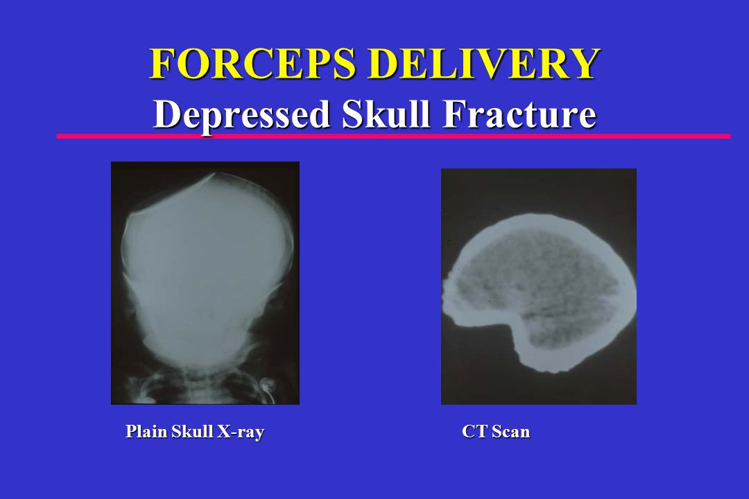 FORCEPS DELIVERY Depressed Skull Fracture Plain Skull X-ray CT Scan