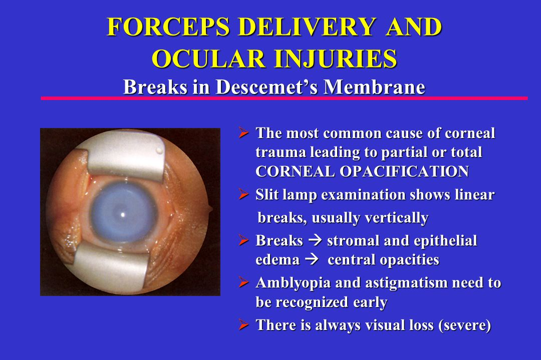 FORCEPS DELIVERY AND OCULAR INJURIES Breaks in Descemet's Membrane  The most common cause of corneal trauma leading to partial or total CORNEAL OPACIFICATION  Slit lamp examination shows linear breaks, usually vertically  Breaks  stromal and epithelial edema  central opacities  Amblyopia and astigmatism need to berecognized early  Amblyopia and astigmatism need to be recognized early  There is always visual loss (severe)